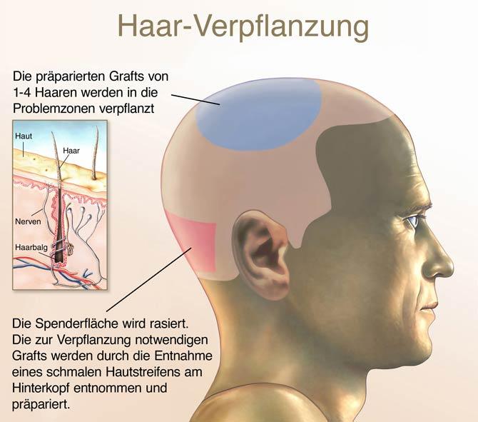 Schaubild - Haarausfall Haarverpflanzung