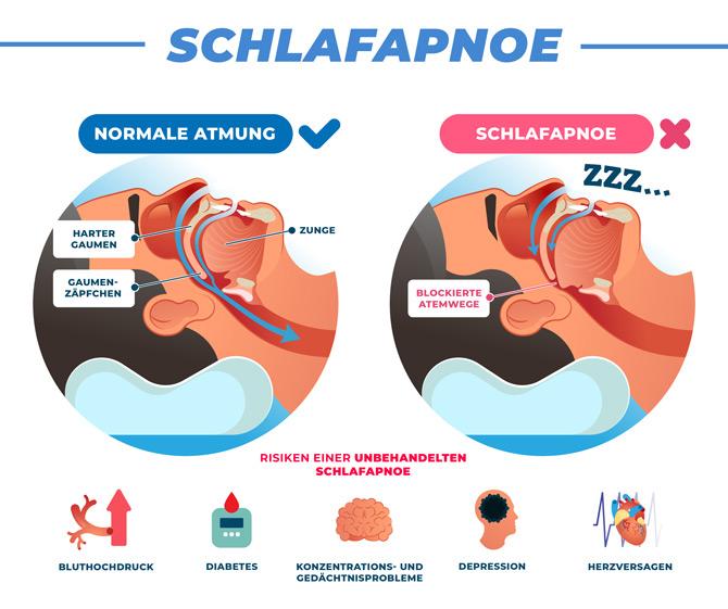 Schlafapnoe - Atemwege - Grafik