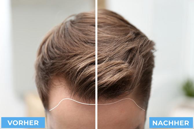 Sechsten bis siebten Monat nach der Haartransplantation